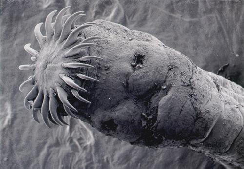 Tapeworms The Horror Within